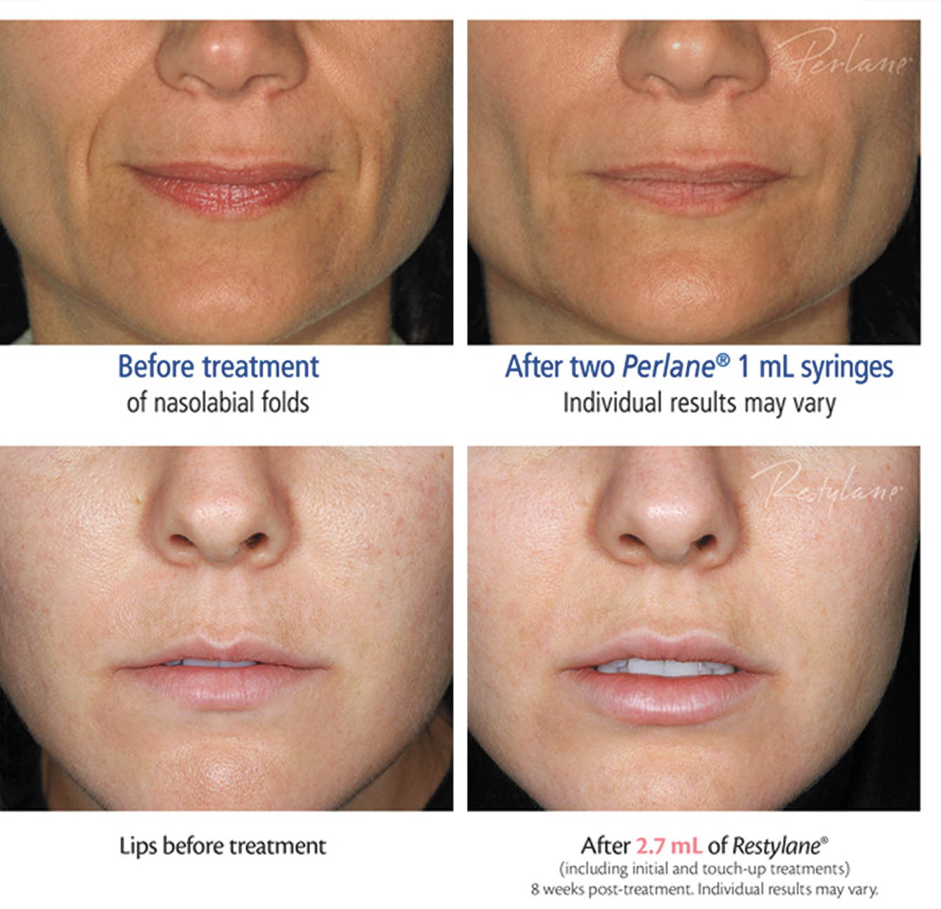 CREATING THE PERFECTION OF PHI WITH FILLERS