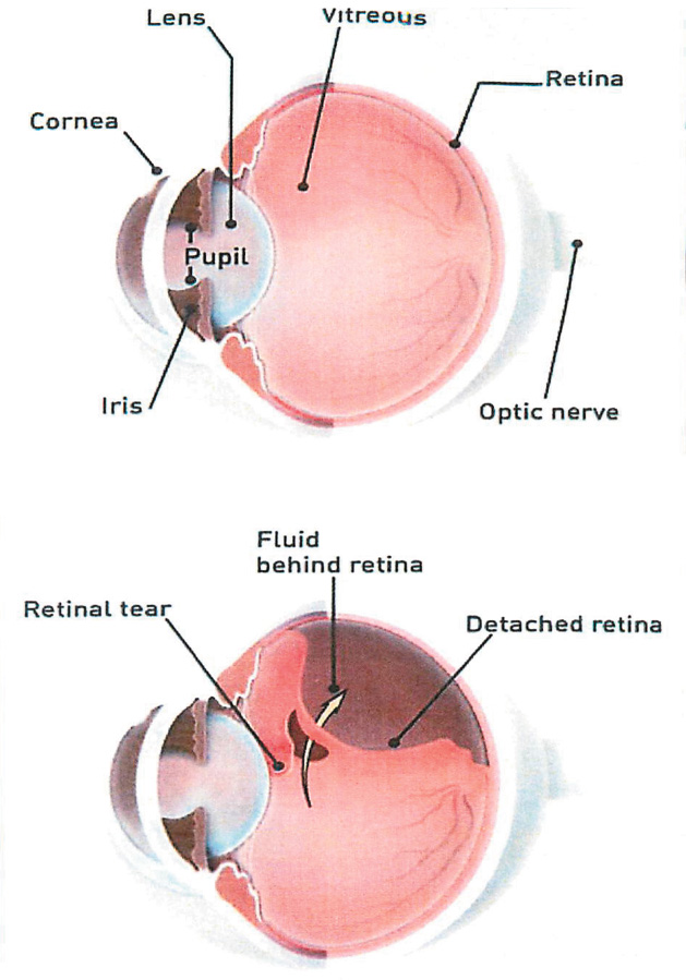 DETACHED AND TORN RETINA