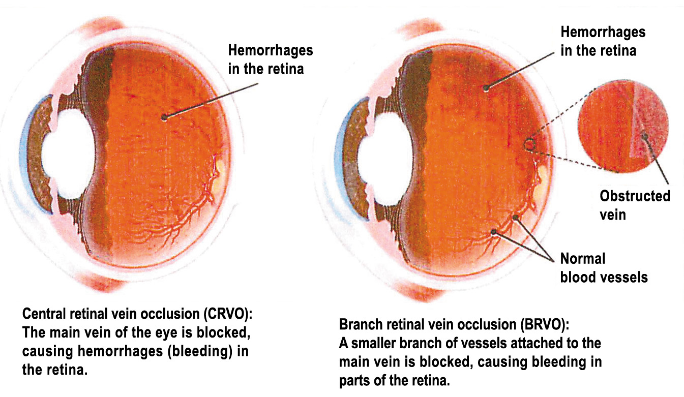 RETINAL VEIN OCCLUSION – South Florida Health and Wellness ...