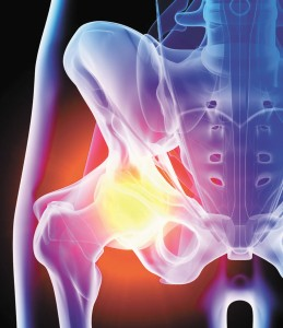 Joint Replacements and Modern Technologies