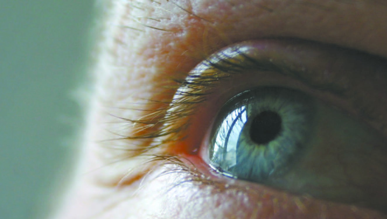 Choroidal Neovascular Membranes Symptoms & Treatments