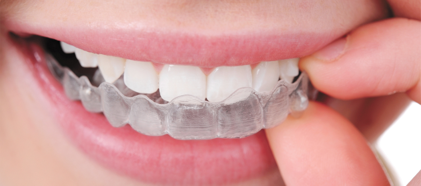 Aesthetic Orthodontic Treatment: It's Hidden!