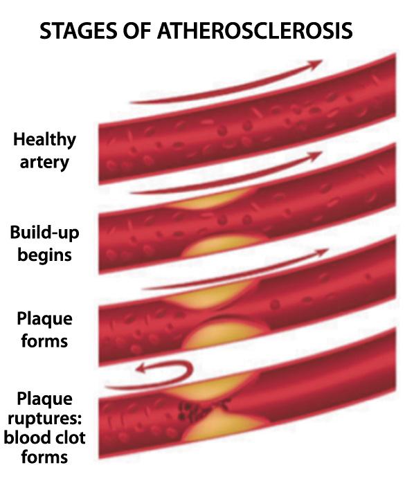 Intravenous EDTA Chelation Therapy