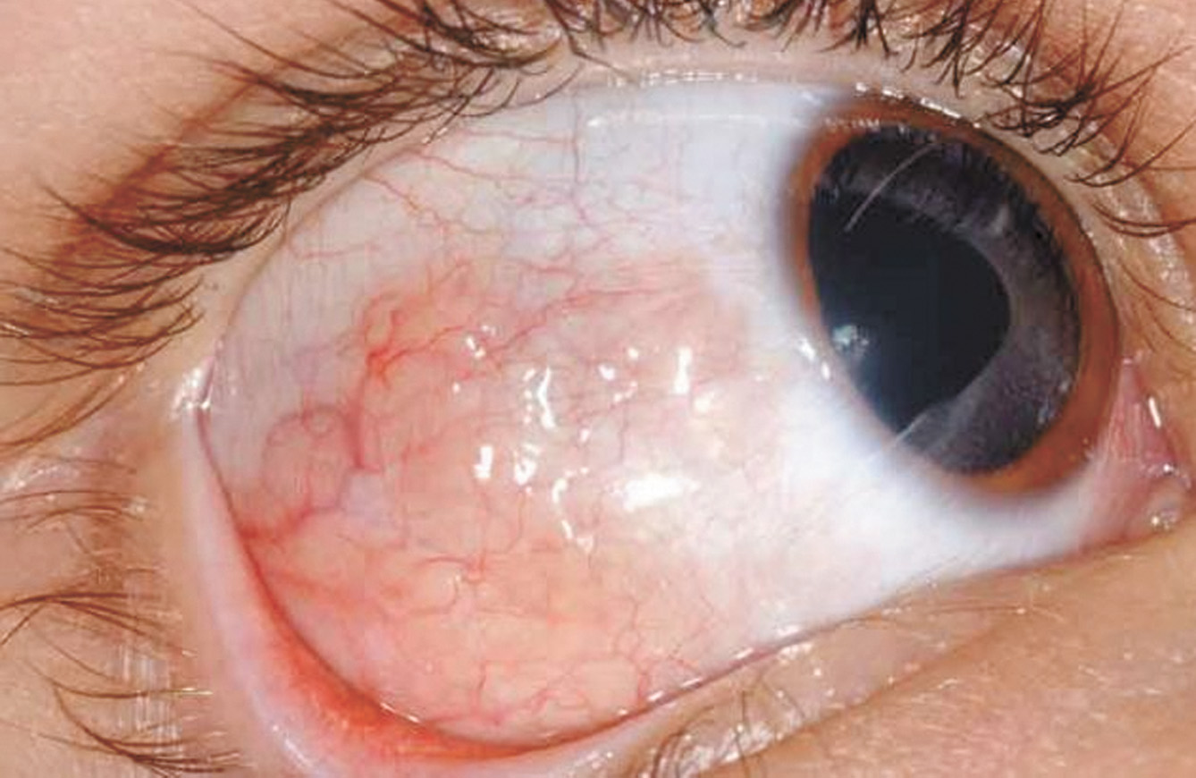 What Is Eye Lymphoma