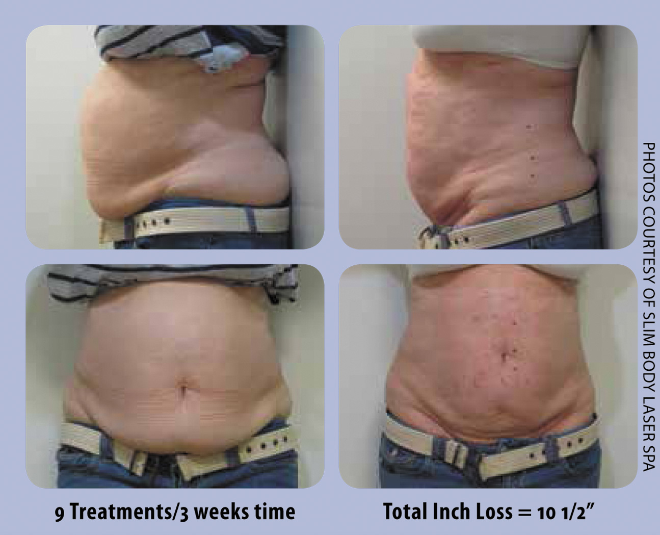 Lose bailey weight loss clinic owasso ok 74055