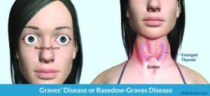 What Is Graves Disease