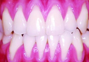 As I Age My Teeth Are Looking Longer-