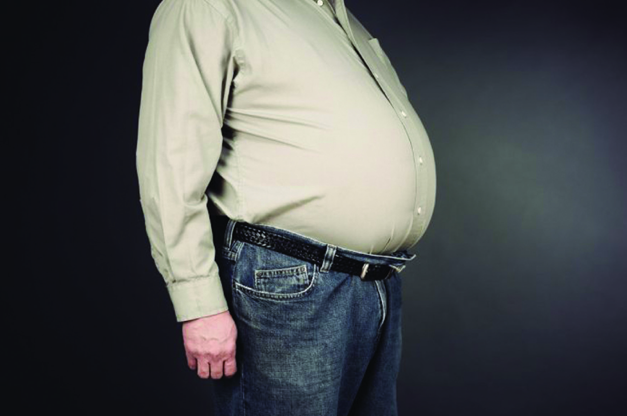 Obesity and Weight Loss Consequences – South Florida ...