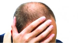 Top Six Reasons Why Your Hair Regrowth Treatments Aren't Working