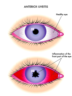 Why Do I Have Uveitis South Florida Health And Wellness