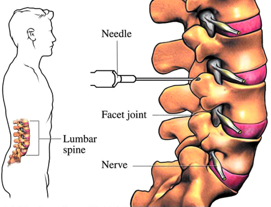 FACET JOINT INJECTIONS FOR BACK PAIN