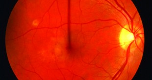 Choroidal Neovascular Membranes