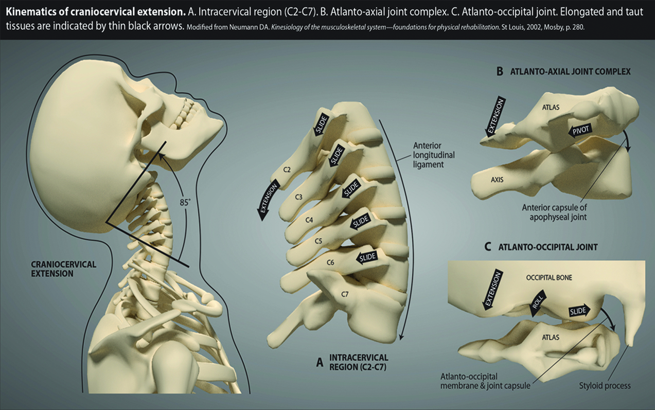 Instability of the cervical spine