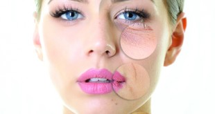 Considering BOTOX or Juvederm?