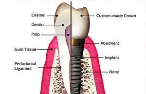 What Are The Differences Between a Tooth and a Dental Implant