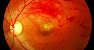 What Is Branch Retinal Vein Occlusion (BRVO)