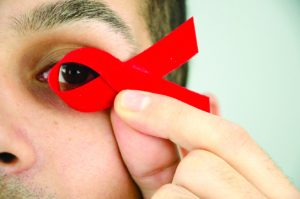HIV AND THE EYES
