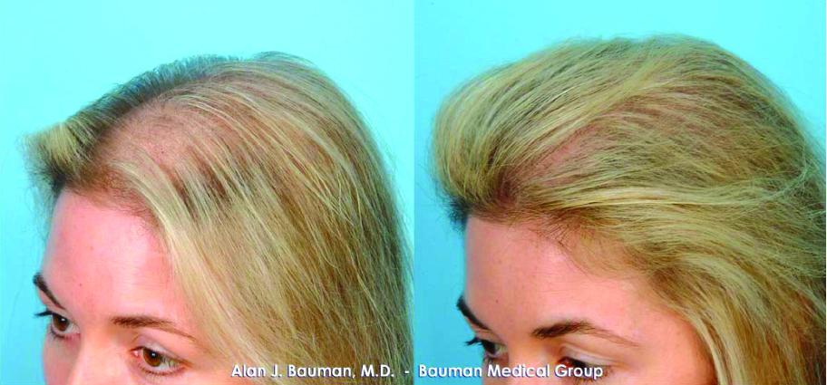 Shark Powder The New Hair Growth Craze Essence
