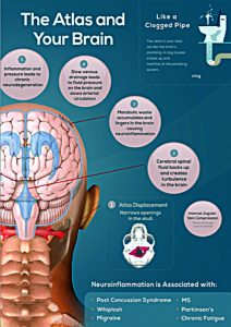 the atlas and multiple sclerosis