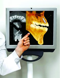 Can A Dental Implant Procedure Really Be Performed in 15 Minutes?
