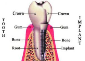 Am I A Candidate For Immediate Dental Implants?
