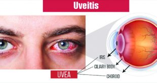 Do I have Uveitis