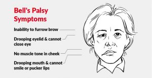 What Is Bell's Palsy?