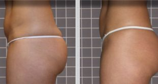 Firm and Remodel Buttocks Frequency 2 sessions per week / 1 week of treatment – 3 cm reduction