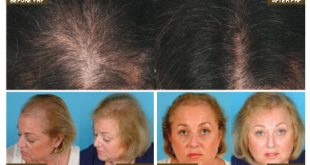 Laser Therapy for Hair Loss: What You Need to Know