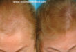 Female before and 12 months after laser therapy with a portable, hands-free laser device