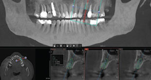 5 Second Low Dose CT Scans for Dental Surgery