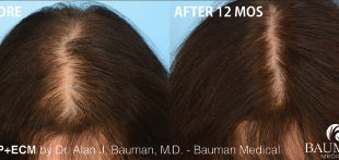 Before and 12 months After PRP+ECM Platelet Rich Plasma with Extracellular Matrix by Dr. Alan Bauman.