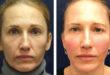 A Game Changer for Non-Surgical Facial Contouring