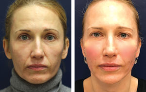 A Game Changer for  Non-Surgical Facial Contouring and Body Contouring