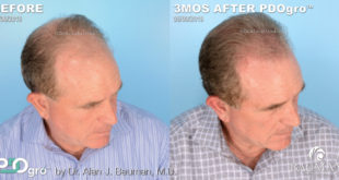 Benefits of Multi-Therapy Approach to Hair Loss