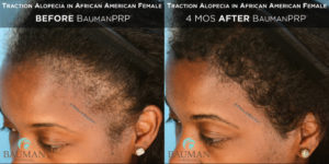 Traction Alocepia before and 4 months After PRP  by Dr. Alan Bauman