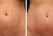 What can you do for cellulite and stretch mark improvement?
