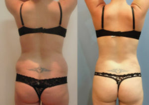 What you need to know about a New alternative to  Old Fashioned Liposuction