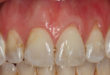 Can Gum Loss Cause Jawbone and Tooth Loss?
