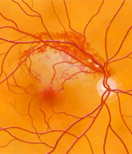 What Is Branch Retinal Vein Occlusion