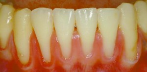 Stopping Your Gums From Going Away