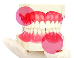 Painless Gum Disease: Do I Need To Treat It?