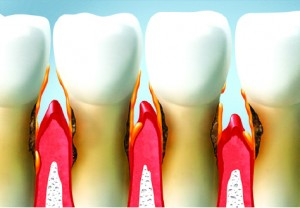 What is a Periodontal Examination