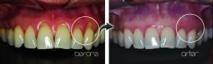 Reversing Gum Recession: