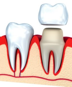 Do I Have Enough Tooth Structure For a Crown?