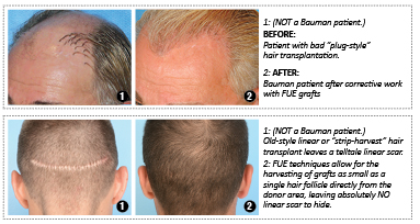 Bumann Medical Hair Restoration