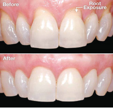 As I  Age My Teeth Are Looking Longer – How Can I Stop This?