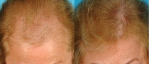 "Bauman ""TURBO"" LaserCap  Sheds New Light on Thinning Hair"