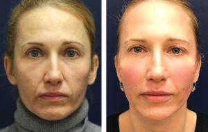 A Game Changer for Non-Surgical Facial Contouring and Body Contouring