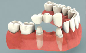 Replacing Missing Teeth – More Options than You May Think